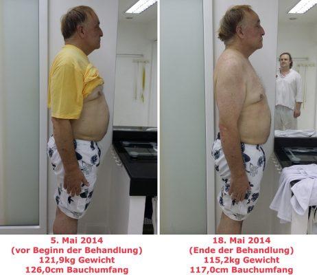 patientenbericht-47-hanspeter_pic1-713119405, 10, 2021