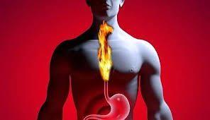 Sodbrennen und Übersäuerung des Magens