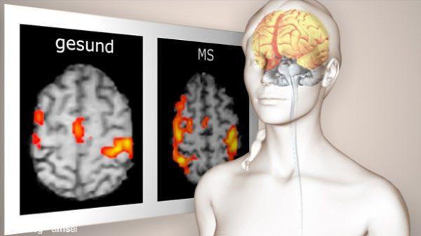 Die MS – Lüge! Skandal um Multiple Sklerose