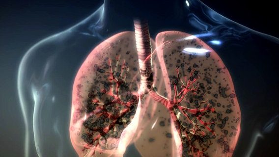 copd-987774605, 10, 2021
