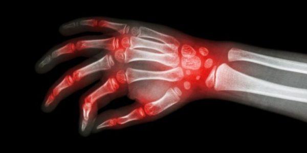 rheuma-und-rheumatoide-arthritis-768x384-568189905, 10, 2021